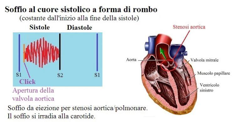soffio sistolico,rombo,stenosi aortica
