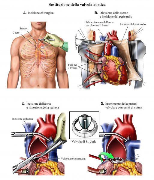 Valvola aortica,sostituzione,intervento chirurgico