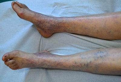 Dolori gravi in gambe a un varicosity