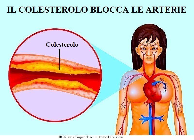 Aterosclerosi,Fattore V di leiden