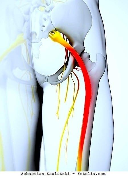 Dolore al gluteo destro e sinistro e gamba anca sciatica for Dolore addome sinistro alto
