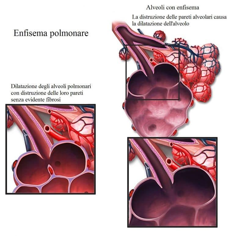 Enfisema cronico,alveoli,BPCO
