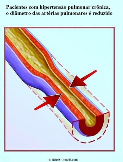 Flebite alla gamba