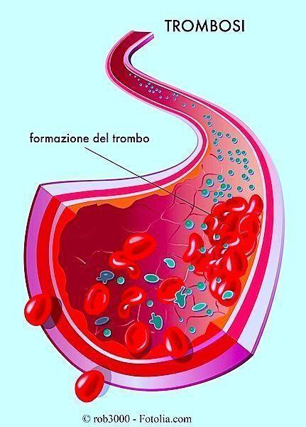Se è possibile fare loperazione thrombophlebitis