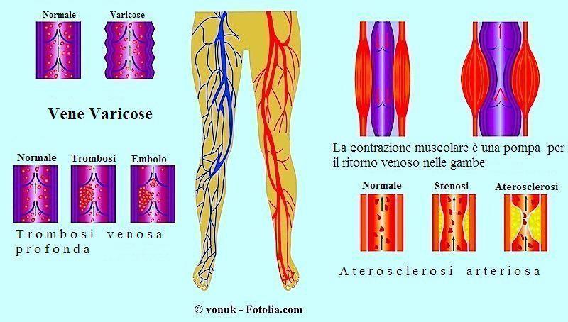 Trombosi affilata di arterie delle estremità più basse