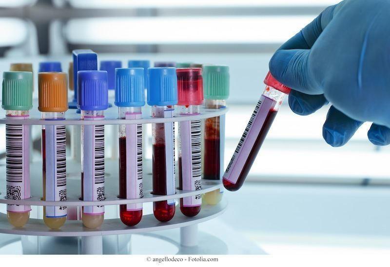 Esami del sangue,piastrinopenia