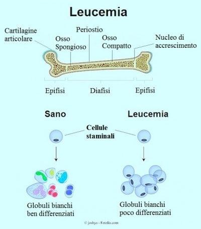 Leucemia linfatica