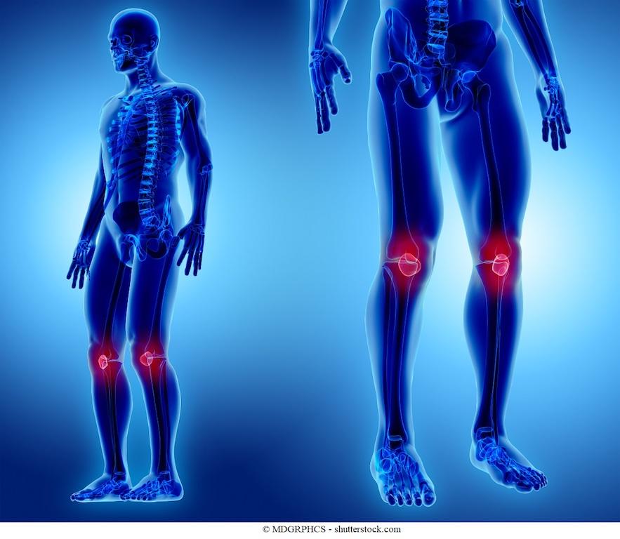 Rigidità muscolare e articolare - notturna e mattutina