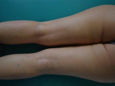 Rottura dei capillari sulle gambe