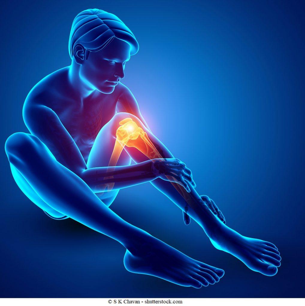 Come curare una contrattura muscolare - 7 passi