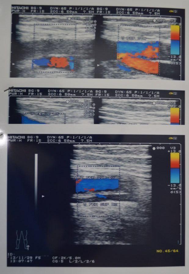 Trombosi profonda di arterie delle estremità più basse
