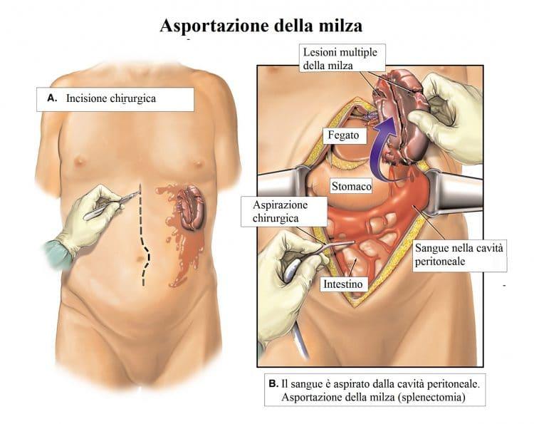 Asportazione della milza,rimozione,intervento chirurgico