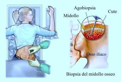 Biopsia del midollo osseo,bacino,leucemia