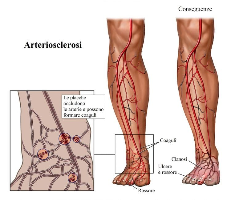 Cianosi,aterosclerosi,problemi di circolazione