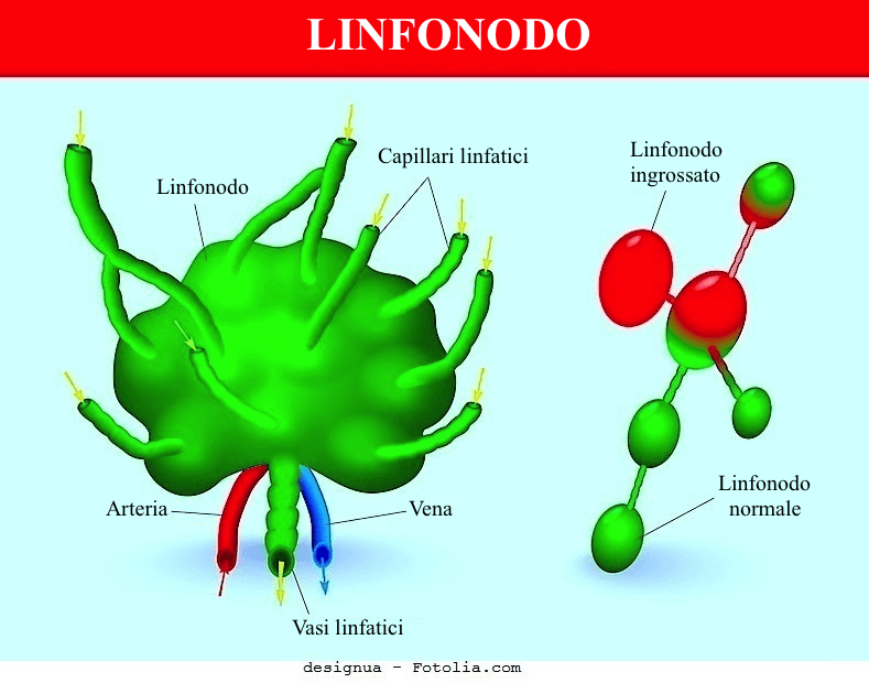 Linfoma,linfonodo ingrossato
