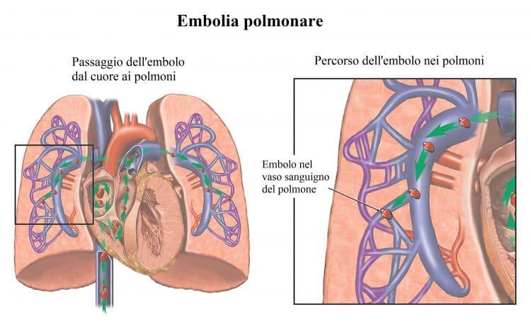 Embolia polmonare,embolo,trombo,arteria
