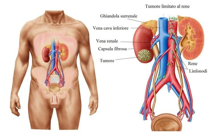 Tumore al rene,renale,neoplasia