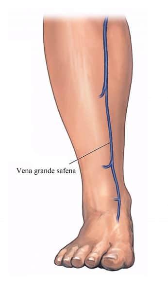 Perché la gamba dopo operazione di rigonfiamenti di varicosity
