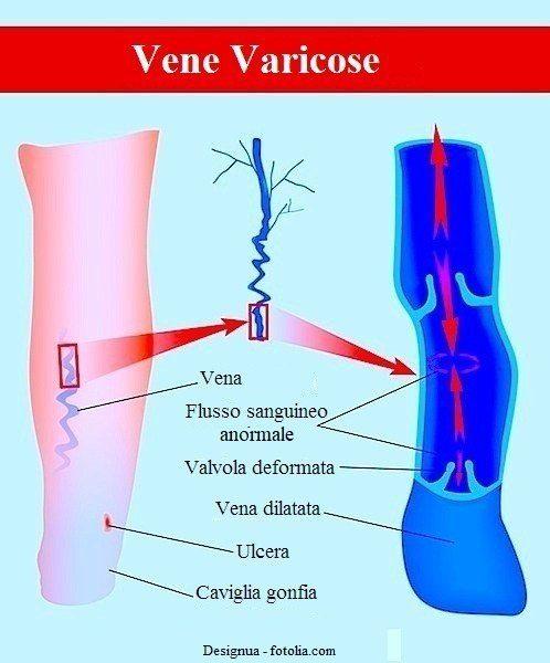 vene-varicose-ulcera-caviglia