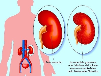 Blocco renale