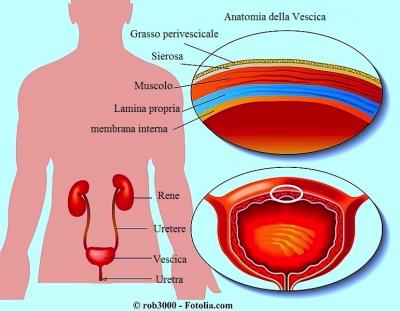 Hamer: Carcinoma della vescica - tumore o ulcera