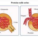 Proteinuria,proteine nelle urine,nefrite