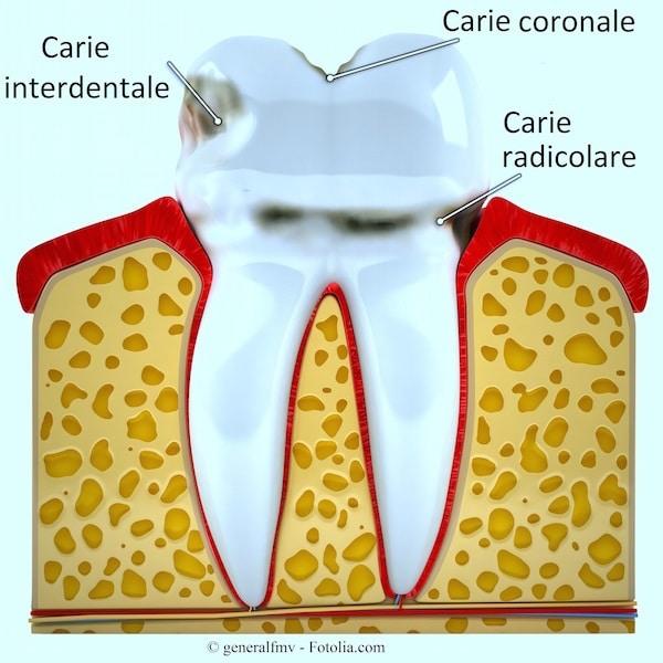 Carie ai denti