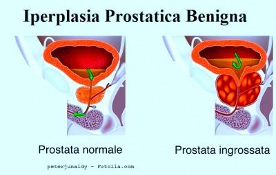 eiaculazione buona o cattiva per la prostatite
