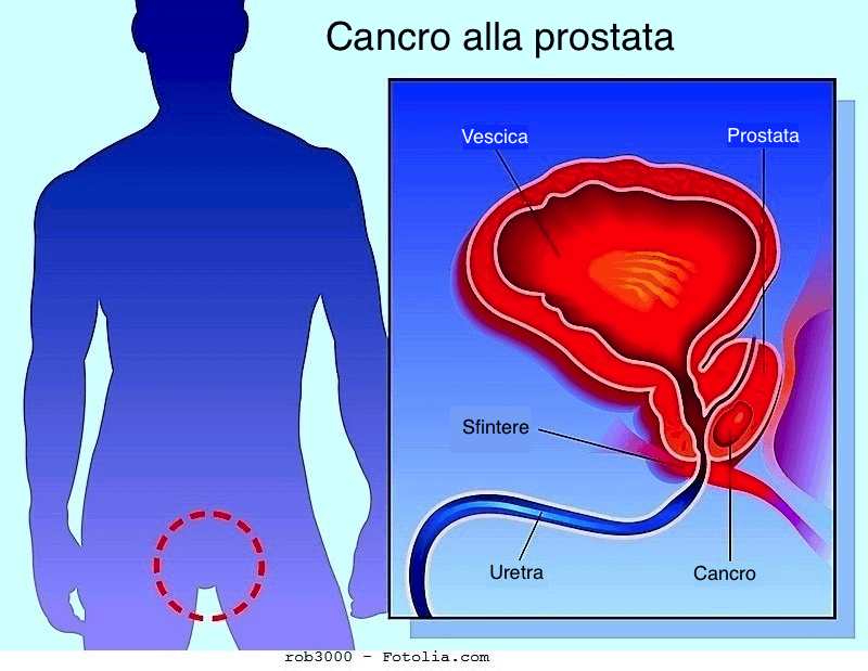 Cos и il punteggio (o score ) di Gleason nel tumore della prostata? Quali implicazioni ha nella valutazione della prognosi del paziente