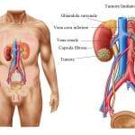 tumore,al,rene