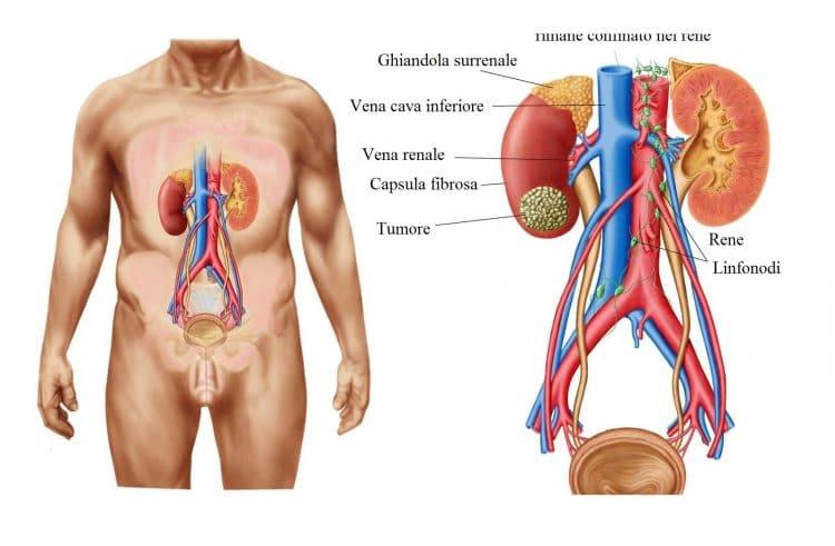 Tumore al rene,renale,massa