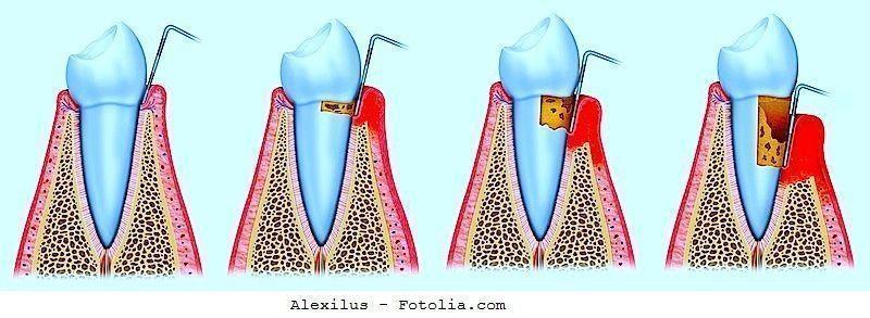 parodontite,cura,cause
