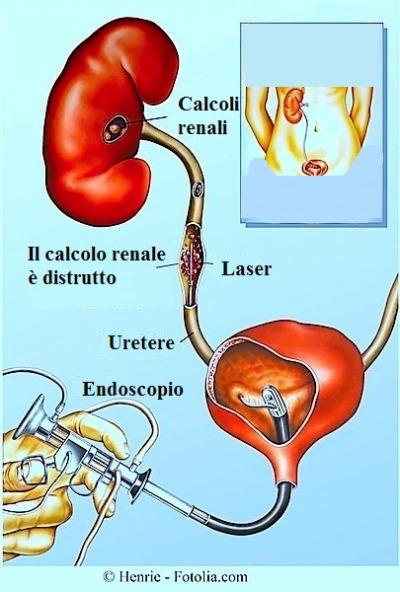 alimentos no permitidos acido urico para bajar acido urico alimentos que contienen exceso de acido urico