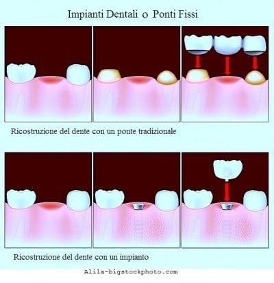 Granuloma dentale o apicale