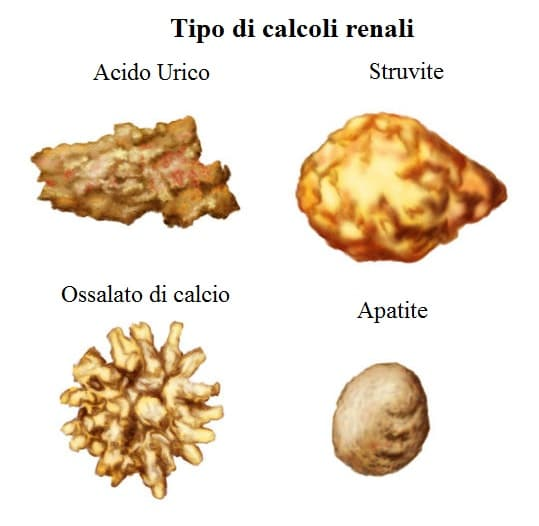 calcoli renali,struvite,calcio,ossalato,acido urico