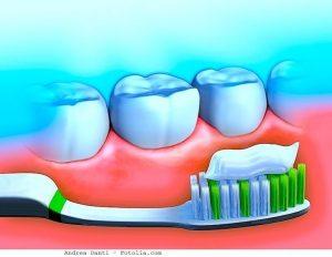 Ascesso dentale