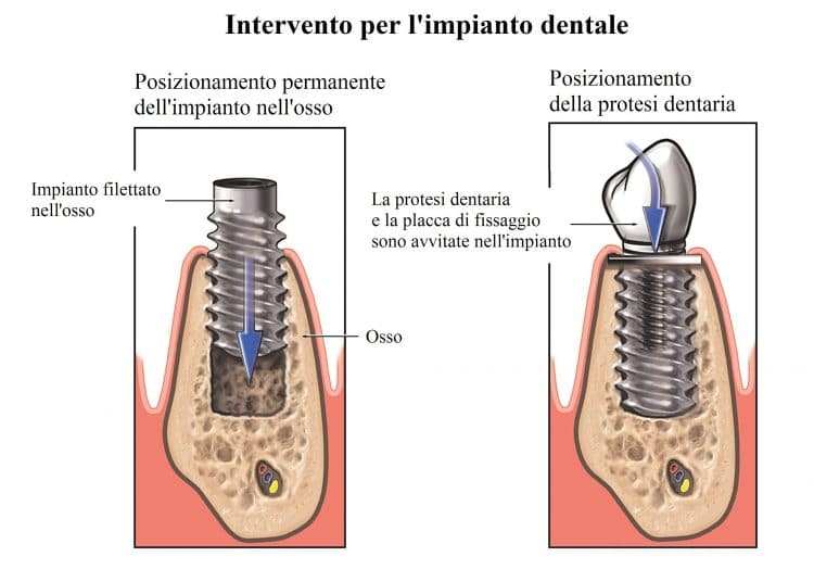 impianto dentale,intervento,dente,mandibola