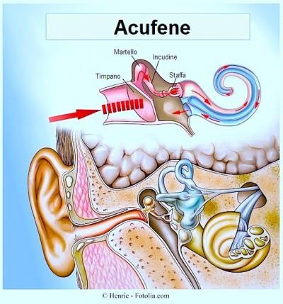 Cause degli acufeni all'orecchio