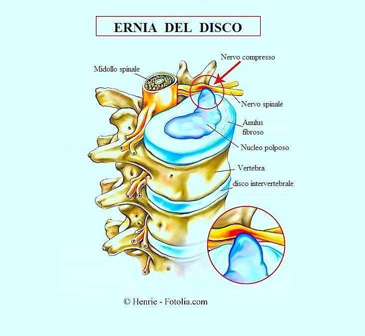 Ernia del disco,lombare