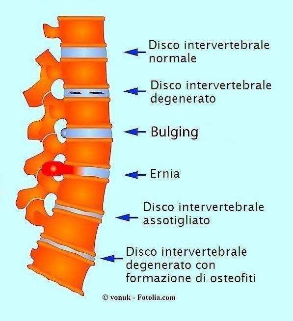 Ernia,bulging,artrosi,osteofiti,schiena