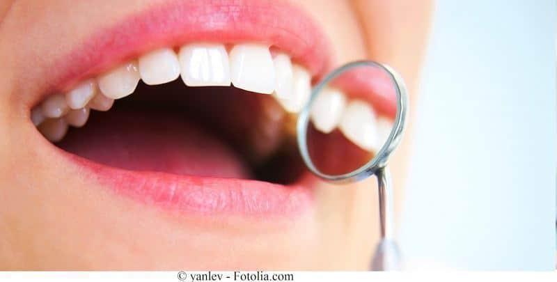 Denti,sorriso,placca