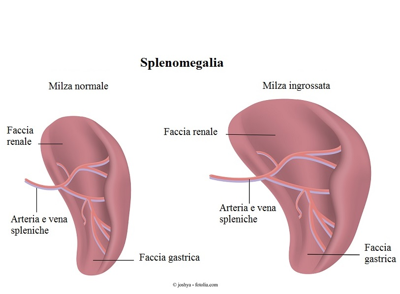 Splenomegalia