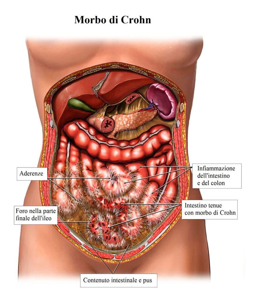 Morbo di Crohn,appendicite,infiammazione,colon