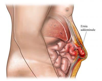Ernia addominale,ombelico,dolore,intestino