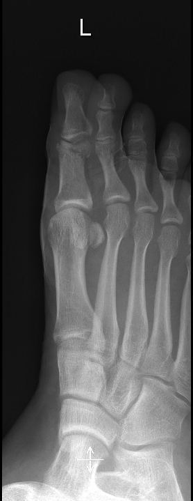 Frattura alluce,radiografia,ridotta