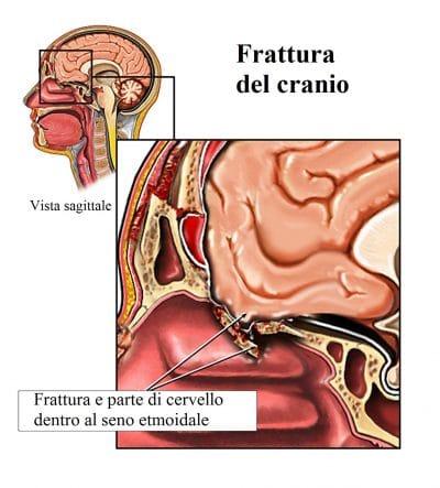 Frattura del cranio
