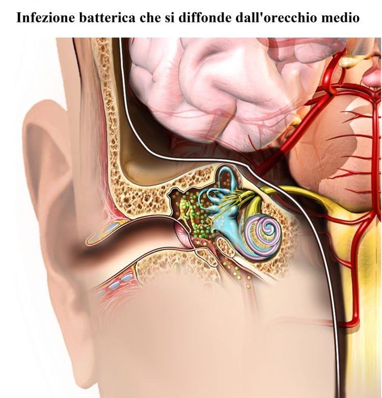 Infezione batterica,orecchio,otite media