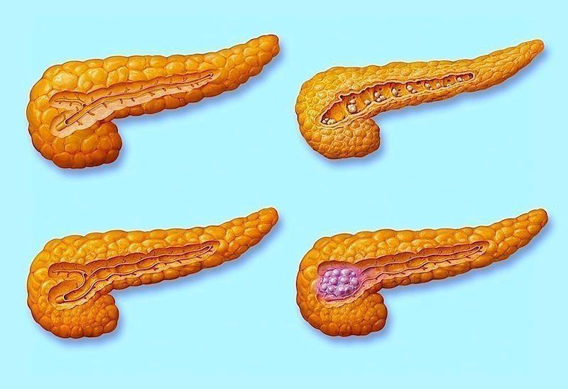 Tumore al pancreas,stadio,IV