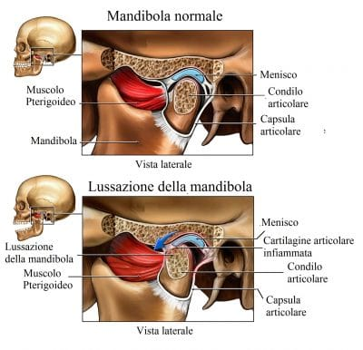 Mandibola,dolore all'orecchio