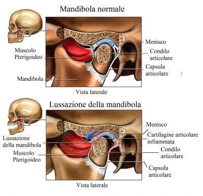 Mandibola,dolore all'orecchio